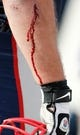 Oct 27, 2013; Foxborough, MA, USA; Blood on the arm of New England Patriots defensive tackle Chris Jones (94) during the second quarter against the Miami Dolphins at Gillette Stadium. Mandatory Credit: Winslow Townson-USA TODAY Sports